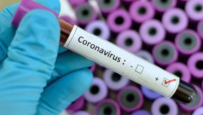 Coronavirus: Reporte diario del día 2 de abril en la provincia